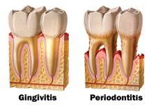 gingivitis 1