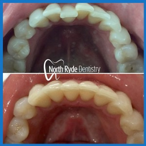 Invisible braces in North Ryde