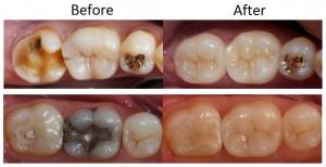 Macquarie Park Dentistry - Dental Crown
