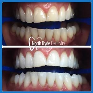 Teeth Whitening in North Ryde