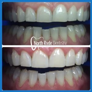 Best dentist for teeth whitening in Macquarie Park