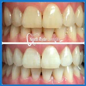 Affordable teeth whitening in Macquarie Park