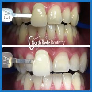 Teeth Whitening in Macquarie Park
