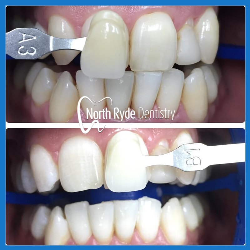 Affordable teeth whitening in North Ryde