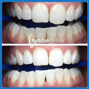 Best dentist for teeth whitening in North Ryde.