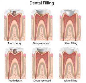 Dental Fillings and Restorations in Macquarie Park