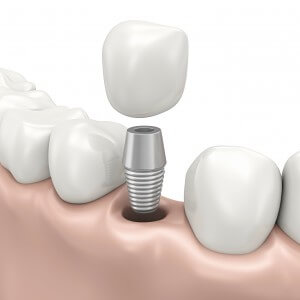 Records state that millions of Americans suffer from loss of teeth due to gingivitis, tooth decay, and mouth injury. In the past, there were only dentures and dental bridges; today, patients can benefit a lot more from dental implants. What do you mean by dental implants? These are replacement roots of teeth that give a durable foundation for both fixed or removable replacement teeth that go well with the appearance of your natural teeth. What are its advantages? Dental implants are infused with the bone and they look like your real teeth. In return you will also have no problems with speech since you won't fear that your dentures might fall off each time you speak. It is also comfortable to use since it fits like your natural teeth and it also functions as such; hence you won't have problems chewing food. In the same way, you can eat everything since you won't have any more eating concerns like you used to. Dental implants also help boost your self-confidence. The implants will allow for easy access to the teeth unlike dentures and this enhances the practice of oral hygiene. Most of your teeth are left intact and not altered to accommodate the implants; this means that you can still clean your teeth with brushing and flossing without any difficulty. Dental implants are also durable that some of them last a lifetime. They are also very convenient to use since there is no need to remove them like dentures. You also have no concerns about adhesives that you normally use to keep dentures in place. What are the chances for dental implants to be successful? The jaw placement affects the success rate of the dental implants. However, in general, it has been recorded that dental implants have 98 percent success rate. This is also intended to last for life. Who can have dental implants? Anyone who is healthy can have dental implants. The patient should have enough bone and healthy gums. The person should also be meticulous about oral hygiene and regular dental visits. Those 