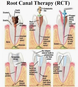 We offer root canal therapy here in Macquarie Park