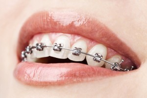 We have the best Orthodontist in North Ryde.