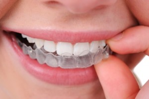 We are the best Invisalign provider in North Ryde.
