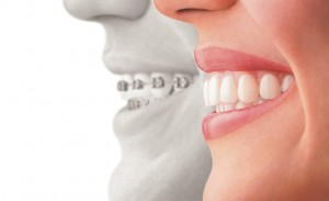 We are the experts when it comes to Invisalign here in North Ryde.