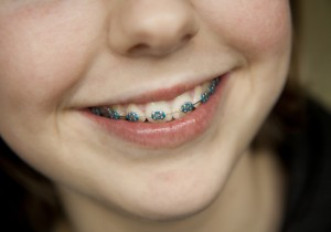We have the experts of Orthodontics in North Ryde.