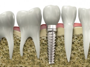 We have the best dental implants in North Ryde.