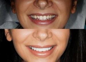 What a gorgeous result with dental veneers.