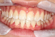 After orthodontics done in North Ryde