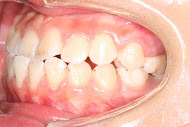 Here's a before photo of a patient from Macquarie Park