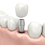 We provide high quality dental implant here in Macquarie Park