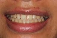 Before having dental veneers from Macquarie Park