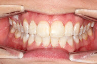 After photo of braces done in Macquarie Park