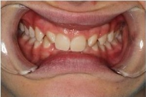 Before Invisalign of a patient from Macquarie Park