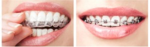 We have Invisalign and Braces special offer here in Macquarie Park