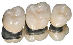 Porcelain Fused to Metal Crown is available here in Macquarie Park