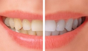 Teeth Whitening Specials here in Macquarie Park