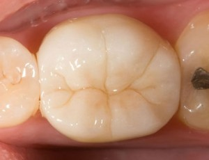 Zirconia crown available here in Macquarie Park