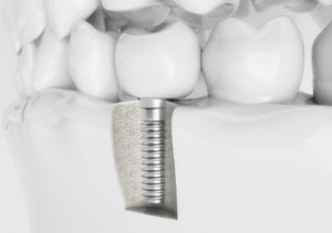 Dental implant cost in North Ryde