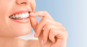 Invisalign in North Ryde