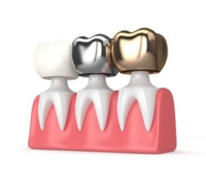Dental crowns in Macquarie Park