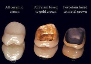 Dental crowns in Macquarie Park