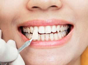The best dental veneers in Macquarie Park.