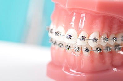 Orthodontics in Macquarie park