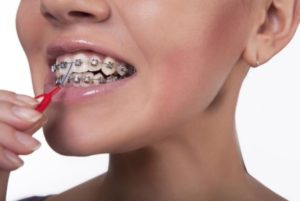 We have the best orthodontist in Macquarie Park.
