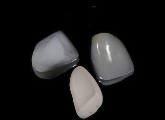 Dental veneers in North Ryde