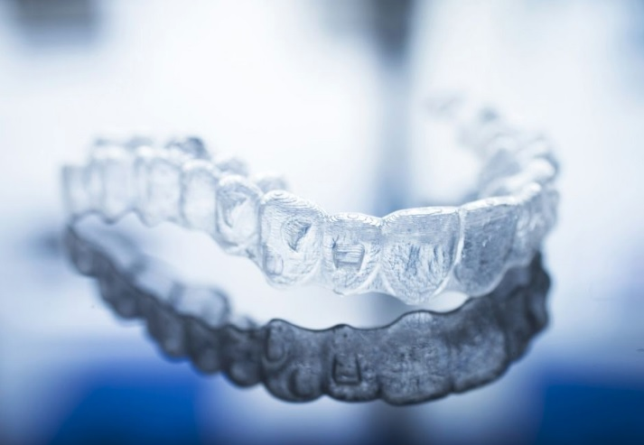 Invisalign in Macquarie Park