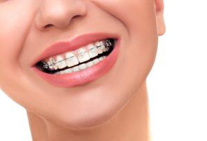 Orthodontics in North Ryde