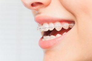 Orthodontics in Macquarie park