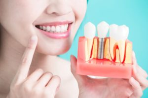 We have the best dental implants in Macquarie Park.