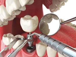We have the best dentist for dental implants here in North Ryde.
