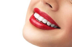 professional teeth whitening dentist in North Ryde