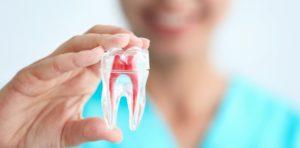 root canal cost in North Ryde
