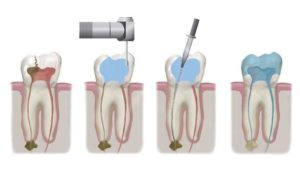 root canal therapy in Macquarie Park