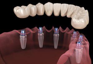 Full Dental Implants in Macquarie Park