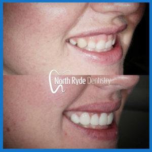 Cosmetic dentistry in Macquarie Park