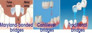 Dental bridge in Macquarie park