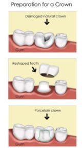 dental crown procedure in North Ryde
