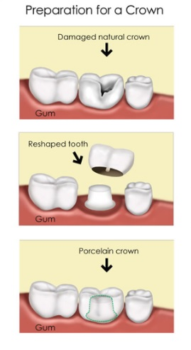 dental crown procedure in North Ryde