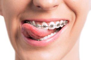 Orthodontic treatment in Macquarie park